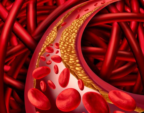 Curcuma bei Cholesterin